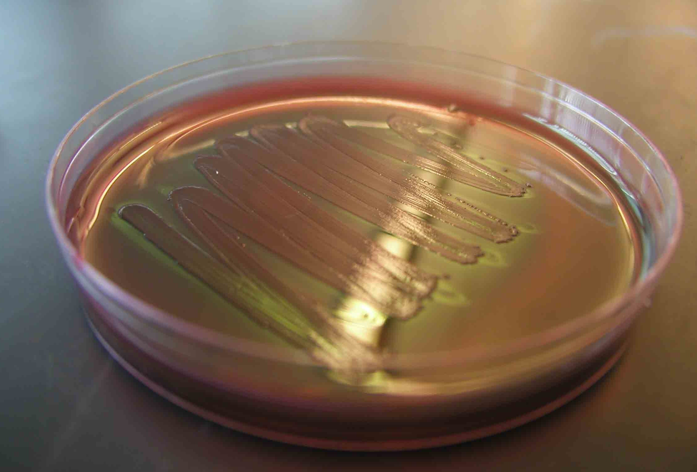 E.Coli on a Petri Plate (CC BY 2.0) Anthony T'Onofrio www.biology101.org