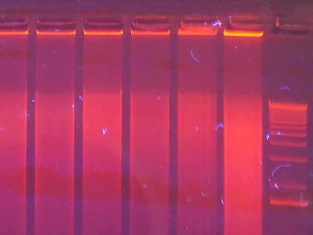 Electrophoresis after genome amplification (CC BY 2.0) Umberto Salvagnin